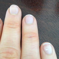 white-spots-on-fingernails